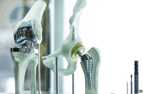 軟骨移植画像
